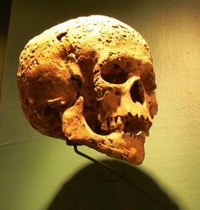 Syphilis Skull